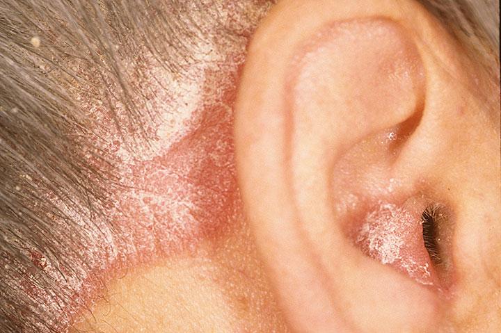 psoriasis scalp 2